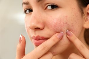 10 Home Remedies to Get Rid of Redness on Face