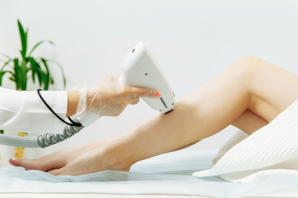 Laser hair removal works on shaved hair.
