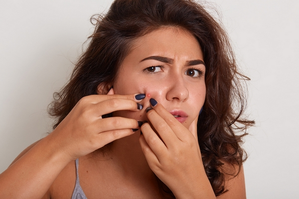 Acne may be a sign of over exfoliated skin.