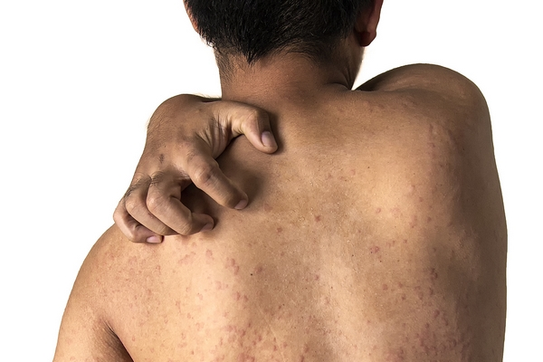 7 Back Acne Causes and How to Get Rid of Them