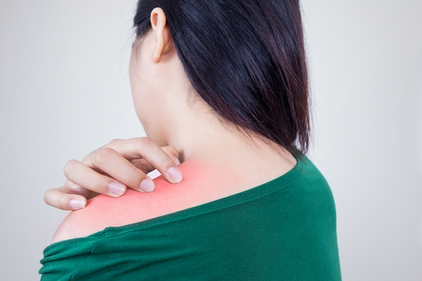 Back acne is caused by wearing tight or sweaty clothes.