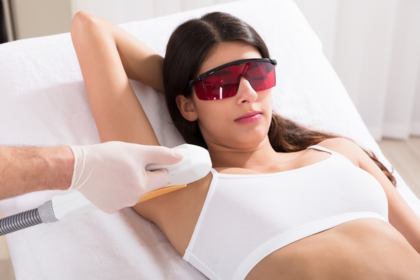 Laser hair removal results in the long term