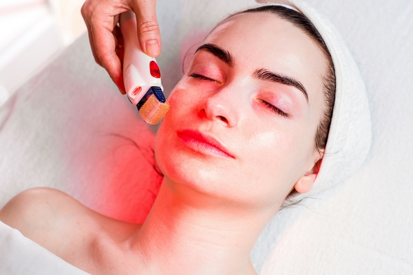 Microneedling treatment for wrinkles on face