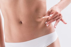 How to Get Rid of Saggy Skin After Weight Loss