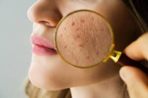 8 Best Treatments and Home Remedies for Acne Scars